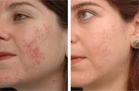 Royal Skin 500 - farmacia - celeiro